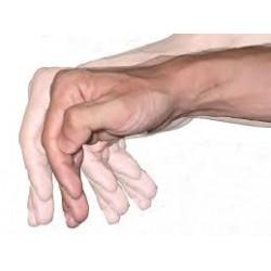 Atención, Cuidados y Tratamiento de la Enfermedad de Parkinson en los Mayores